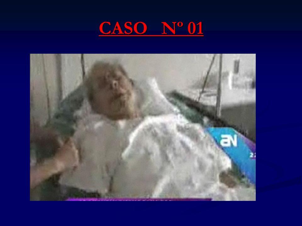 CASO Nº 01