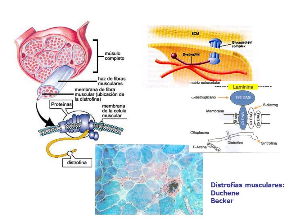 Distrofias musculares: Duchene Becker