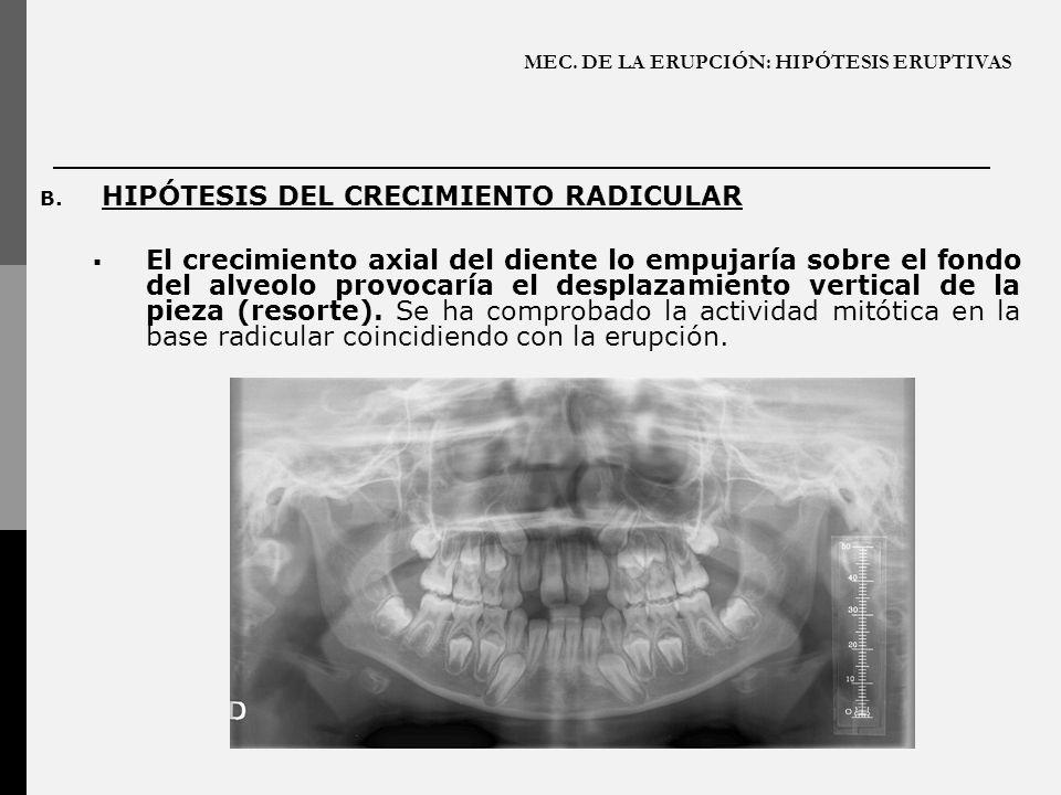 MEC. DE LA ERUPCIÓN: HIPÓTESIS ERUPTIVAS B. HIPÓTESIS DEL CRECIMIENTO RADICULAR El crecimiento axial del diente lo empujaría sobre el fondo del alveol