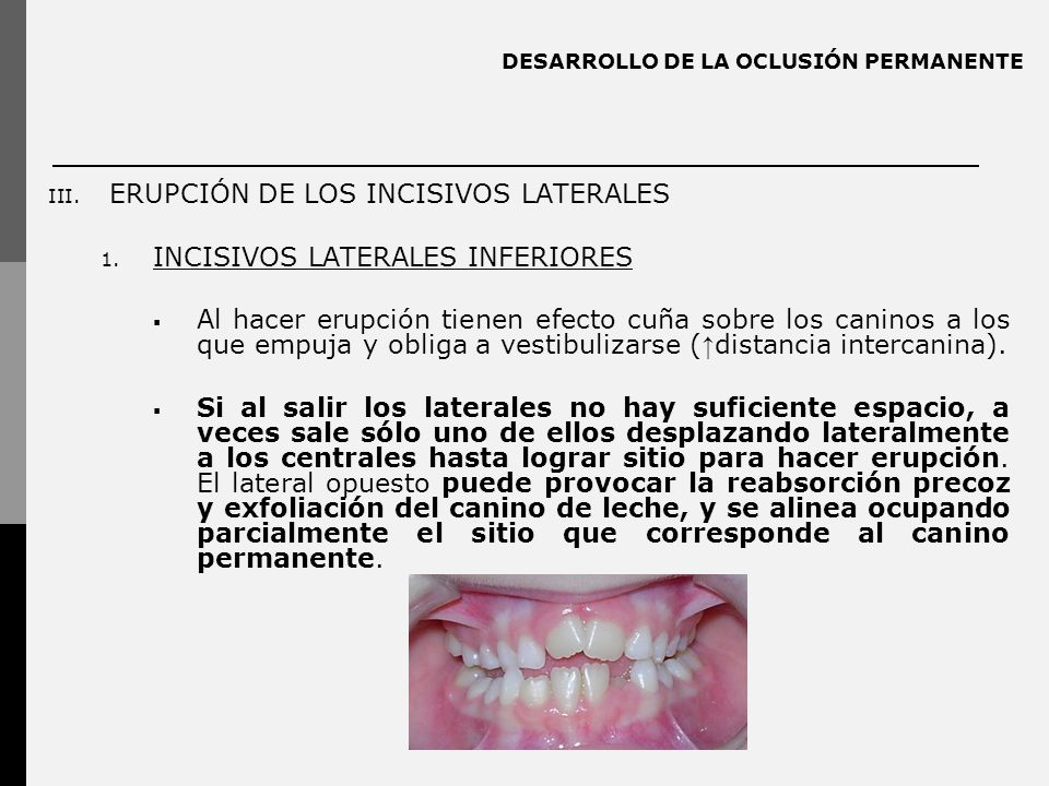 DESARROLLO DE LA OCLUSIÓN PERMANENTE III.ERUPCIÓN DE LOS INCISIVOS LATERALES 1.