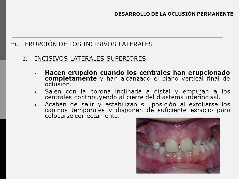 DESARROLLO DE LA OCLUSIÓN PERMANENTE III.ERUPCIÓN DE LOS INCISIVOS LATERALES 2.