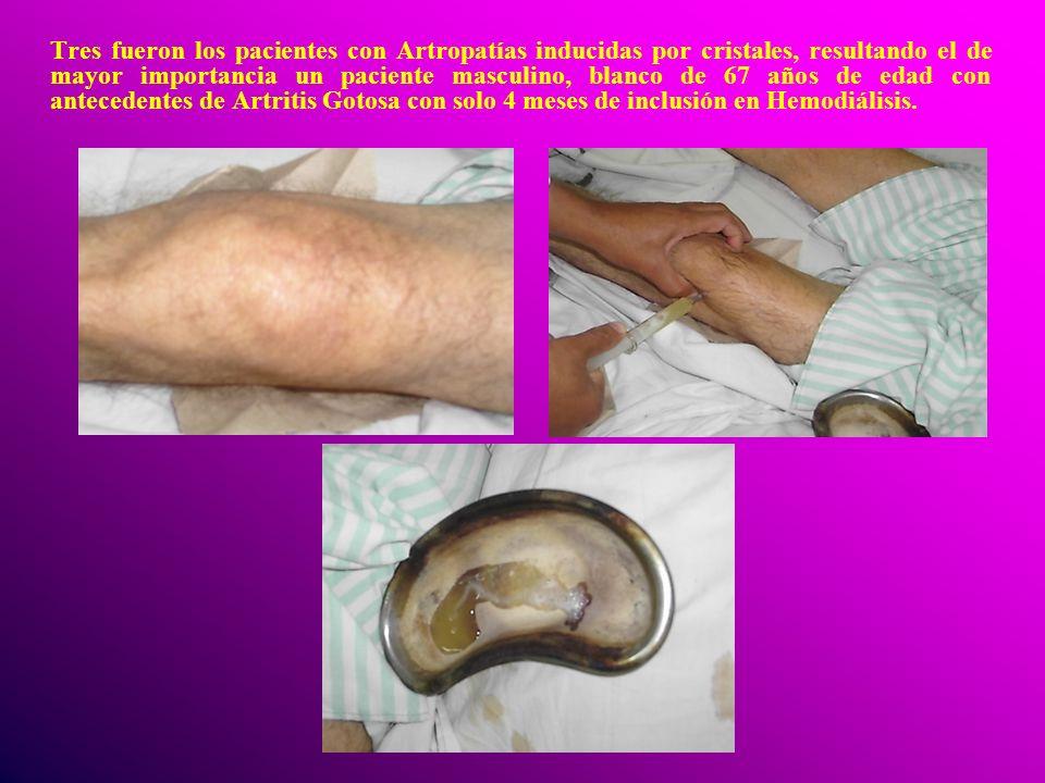 Tres fueron los pacientes con Artropatías inducidas por cristales, resultando el de mayor importancia un paciente masculino, blanco de 67 años de edad