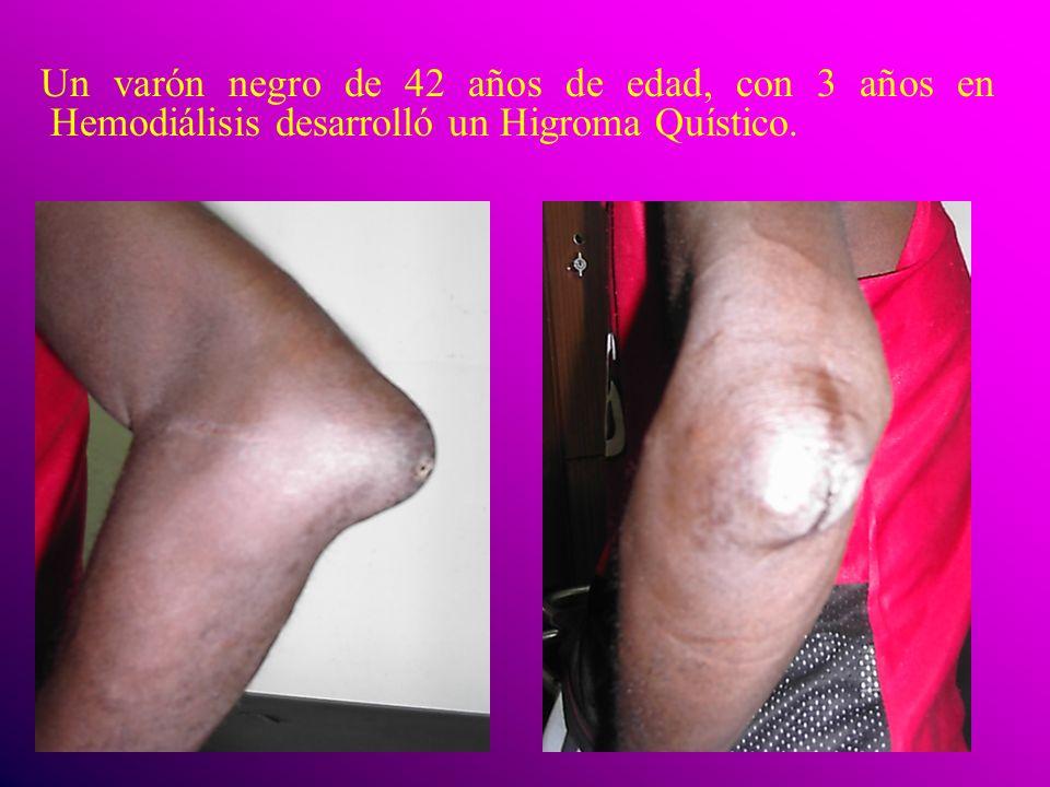 Un varón negro de 42 años de edad, con 3 años en Hemodiálisis desarrolló un Higroma Quístico.