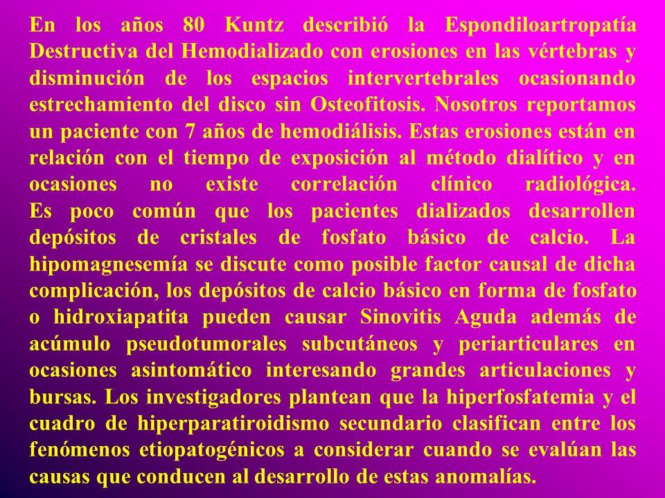 En los años 80 Kuntz describió la Espondiloartropatía Destructiva del Hemodializado con erosiones en las vértebras y disminución de los espacios inter
