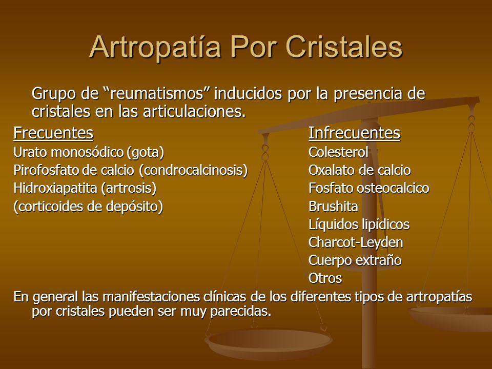 Artropatía Por Cristales Grupo de reumatismos inducidos por la presencia de cristales en las articulaciones. FrecuentesInfrecuentes Urato monosódico (