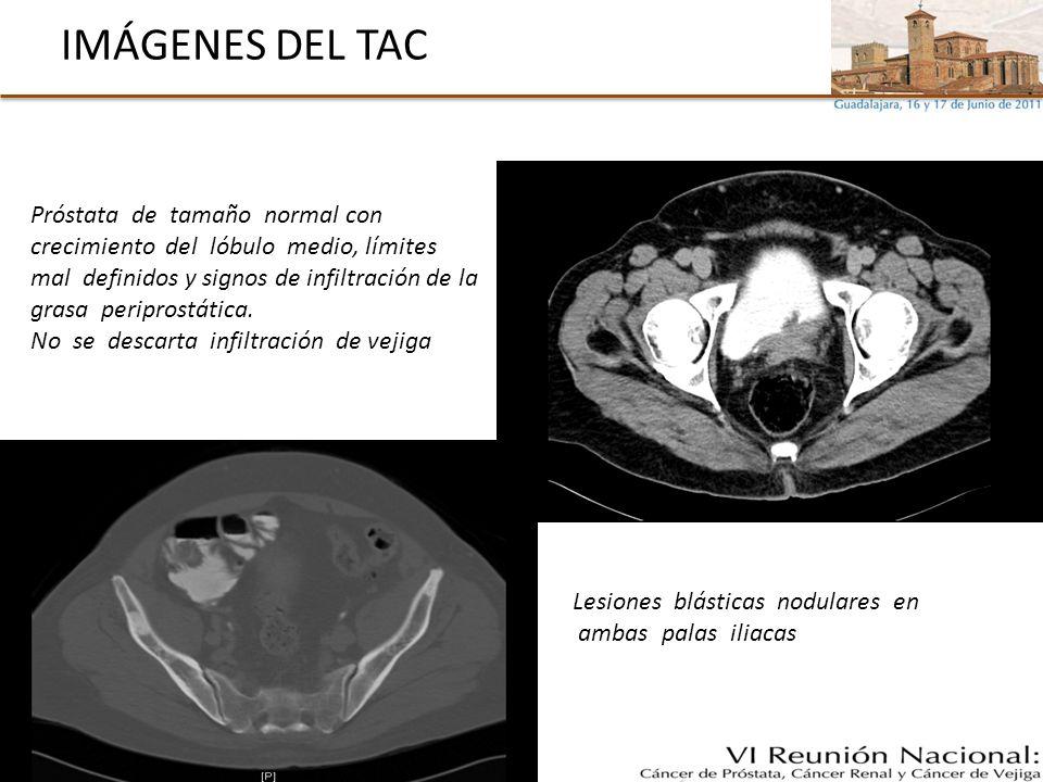 VALORACION DIAGNOSTICA Y PLAN ADENOCARCINOMA DE PRÓSTATA Gleason 7 y PSA: 17, Estadio cT3-4N1M1 (M1óseas) (ECOG:0, Semiología urinaria, no dolor óseo) Plan terapéutico: BLOQUEO ANDROGÉNICO COMPLETO (Goserelina + Bicalutamida)
