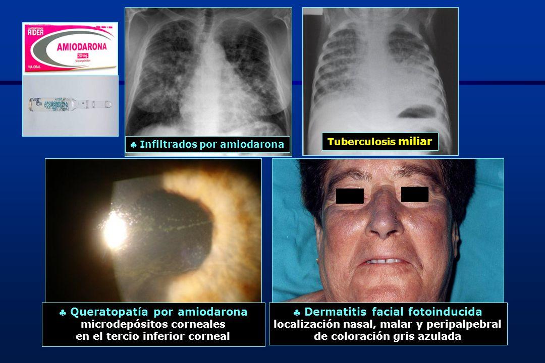 23 Tirotoxicosis