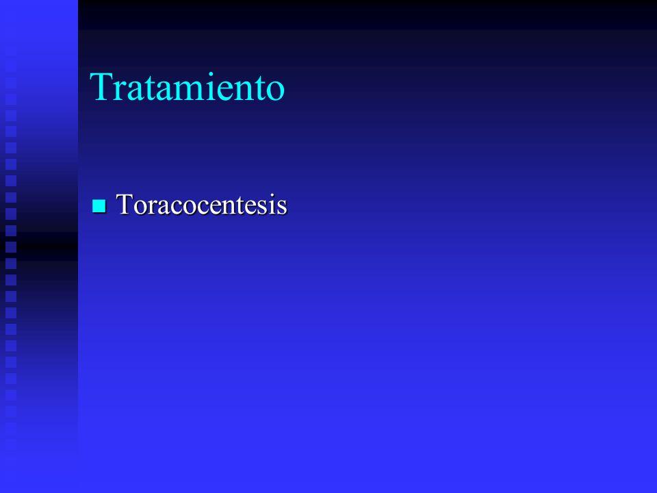 Tratamiento Toracocentesis Toracocentesis