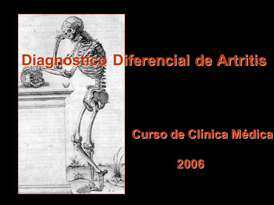 Diagnóstico Diferencial de Artritis Curso de Clínica Médica 2006
