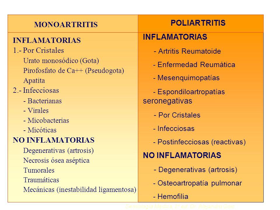 MONOARTRITIS INFLAMATORIAS 1.- Por Cristales Urato monosódico (Gota) Pirofosfato de Ca++ (Pseudogota) Apatita 2.- Infecciosas - Bacterianas - Virales