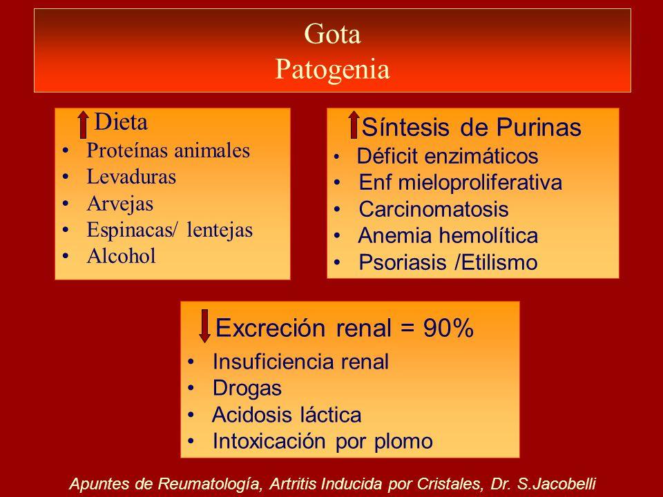 Gota Patogenia Síntesis de Purinas Déficit enzimáticos Enf mieloproliferativa Carcinomatosis Anemia hemolítica Psoriasis /Etilismo Dieta Proteínas ani