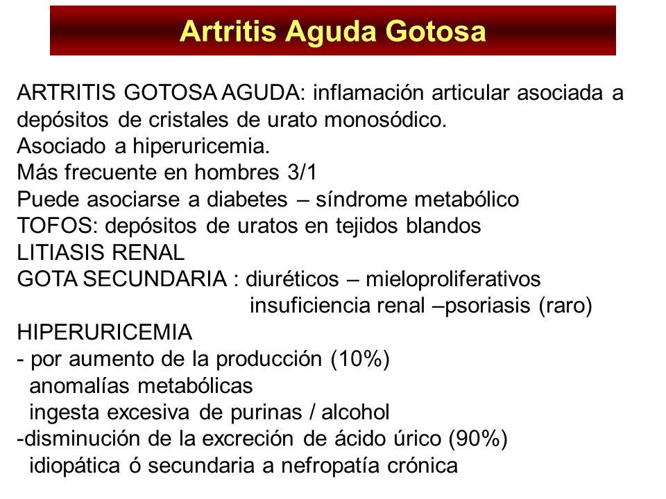 Artritis Aguda Gotosa ARTRITIS GOTOSA AGUDA: inflamación articular asociada a depósitos de cristales de urato monosódico. Asociado a hiperuricemia. Má