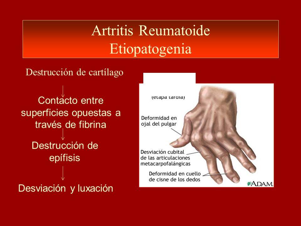 Artritis Reumatoide Etiopatogenia Destrucción de cartílago Contacto entre superficies opuestas a través de fibrina Destrucción de epífisis Desviación