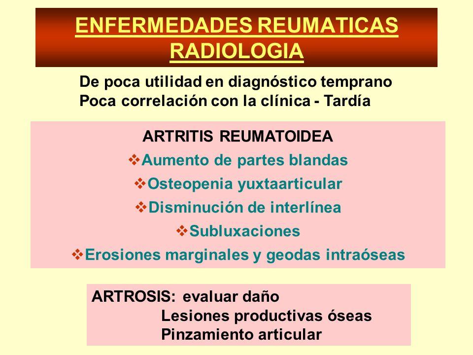 ENFERMEDADES REUMATICAS RADIOLOGIA ARTRITIS REUMATOIDEA Aumento de partes blandas Osteopenia yuxtaarticular Disminución de interlínea Subluxaciones Er