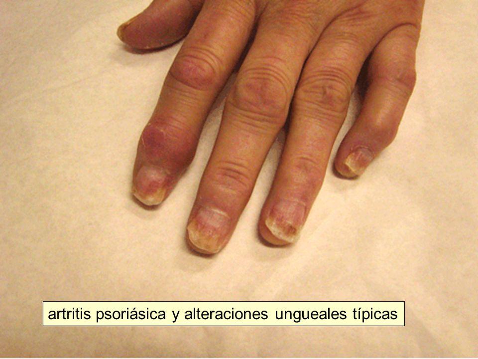 artritis psoriásica y alteraciones ungueales típicas