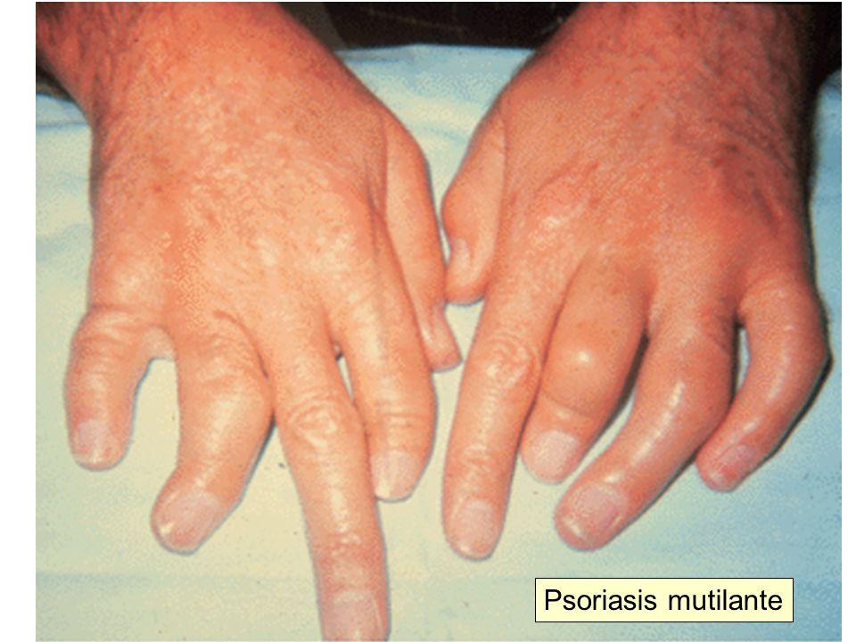 Psoriasis mutilante