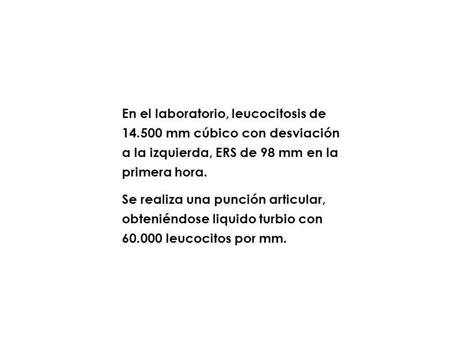 En el laboratorio, leucocitosis de 14.500 mm cúbico con desviación a la izquierda, ERS de 98 mm en la primera hora. Se realiza una punción articular,