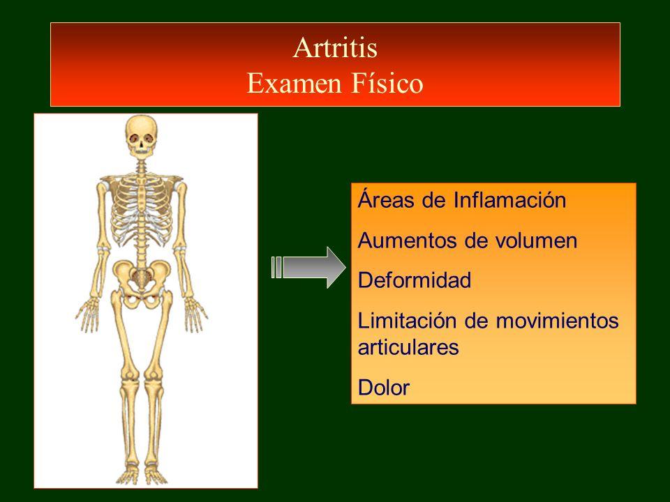 Artritis Séptica Tratamiento Drenaje de la articulación –Mala respuesta a tto –Persistencia de cultivos (+) –Tabiques intraarticulares –Artritis infecciosas no tratadas, de varias semanas de evolución Rehabilitación