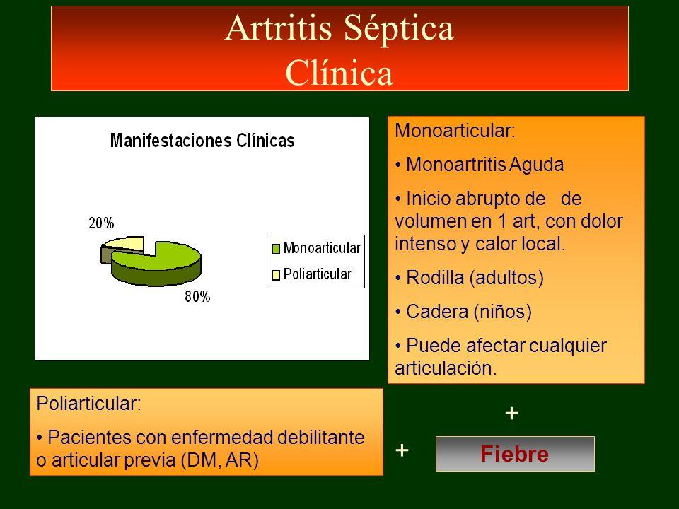 Artritis Séptica Clínica Monoarticular: Monoartritis Aguda Inicio abrupto de de volumen en 1 art, con dolor intenso y calor local. Rodilla (adultos) C