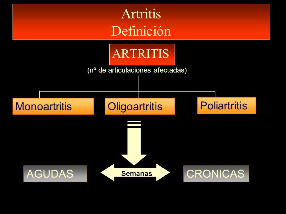 Artritis Definición ARTRITIS (nº de articulaciones afectadas) MonoartritisOligoartritis Poliartritis AGUDASCRONICAS Semanas