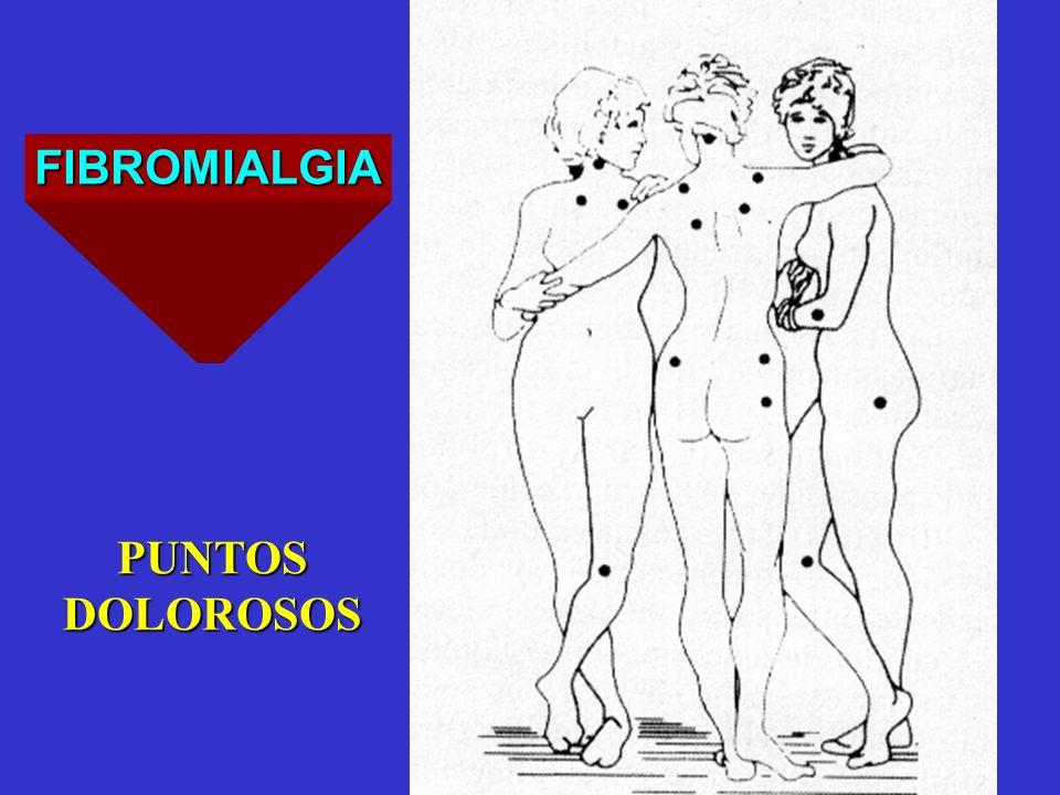 FIBROMIALGIA PUNTOSDOLOROSOS