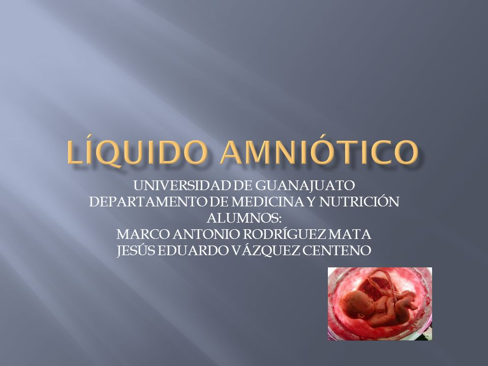 UNIVERSIDAD DE GUANAJUATO DEPARTAMENTO DE MEDICINA Y NUTRICIÓN ALUMNOS: MARCO ANTONIO RODRÍGUEZ MATA JESÚS EDUARDO VÁZQUEZ CENTENO