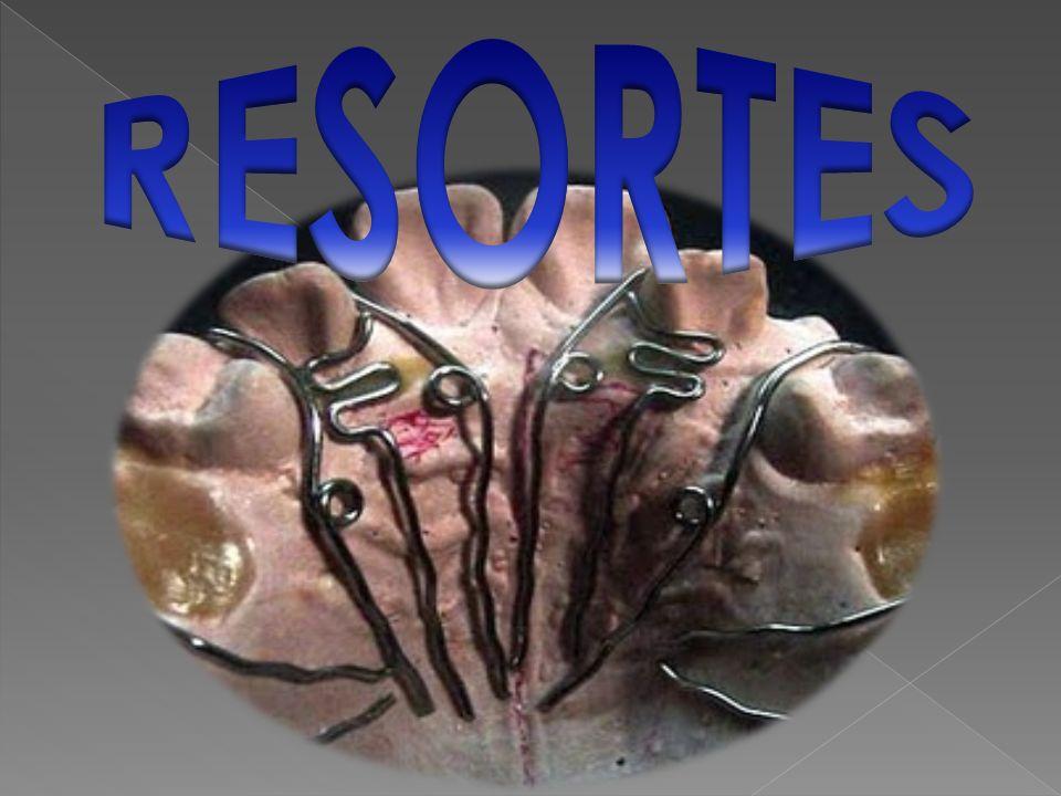 Los resortes son elementos mecánicos utilizados en ortodoncia.