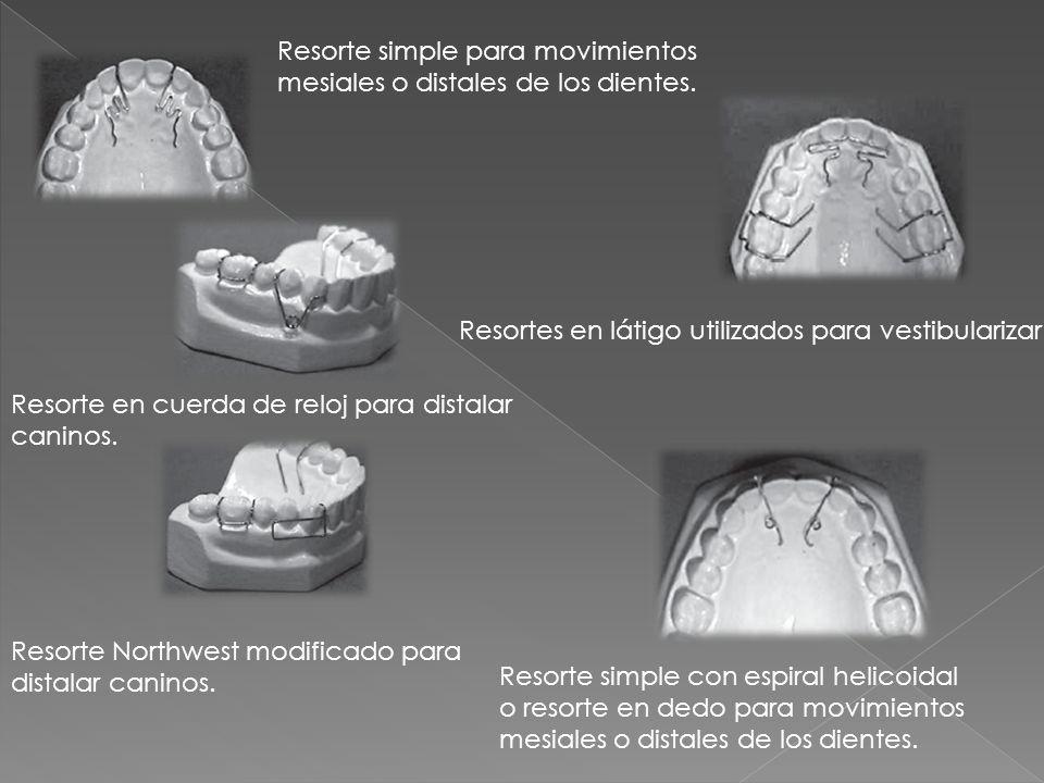 Resorte simple para movimientos mesiales o distales de los dientes. Resorte simple con espiral helicoidal o resorte en dedo para movimientos mesiales
