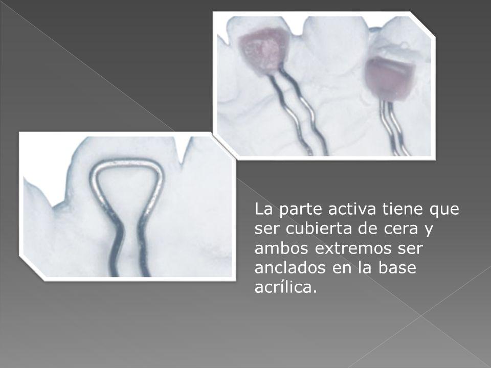 Bimbler: Se utiliza para vestibularizar dientes anteriores.