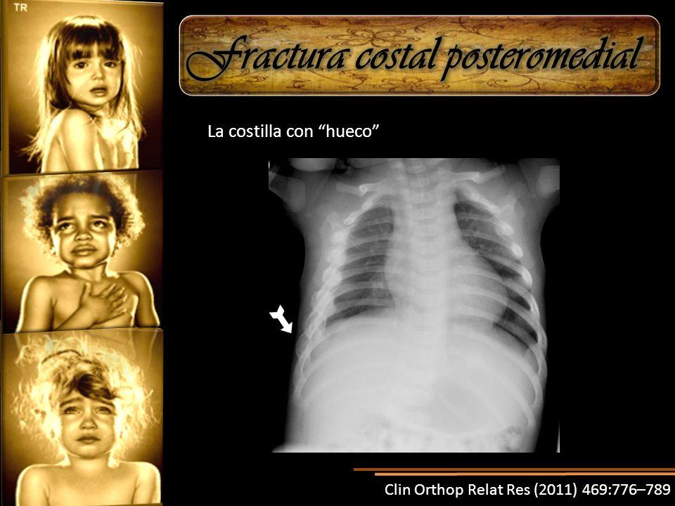 Clin Orthop Relat Res (2011) 469:776–789 La costilla con hueco