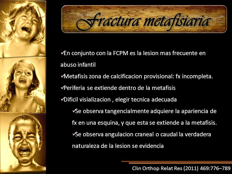 En conjunto con la FCPM es la lesion mas frecuente en abuso infantil Metafisis zona de calcificacion provisional: fx incompleta. Periferia se extiende