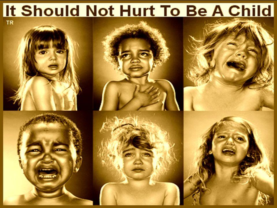 En ninos < 3 anos de edad es un indicador predictivo positivo en 95% de los casos de abuso infantil Multiples fx lat, pueden ser causadas por accidentes automovilisticos o enfermedad metabolica Mecanismo produccion