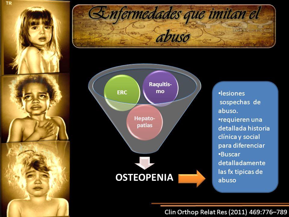ERC Raquitis- mo Hepato- patias OSTEOPENIA lesiones sospechas de abuso. requieren una detallada historia clínica y social para diferenciar Buscar deta