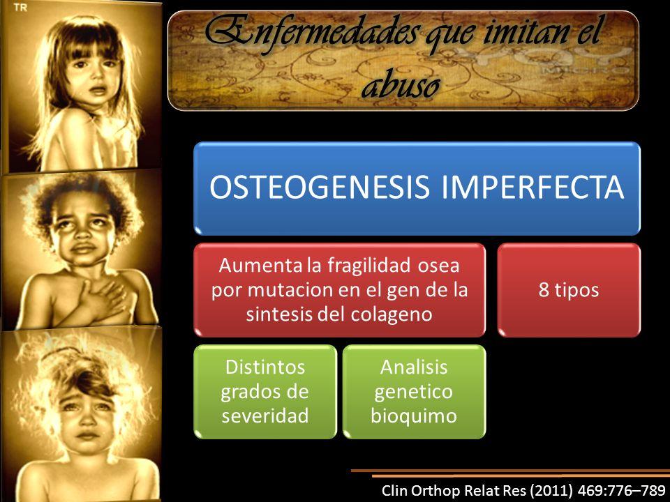 Clin Orthop Relat Res (2011) 469:776–789 OSTEOGENESIS IMPERFECTA Aumenta la fragilidad osea por mutacion en el gen de la sintesis del colageno Distintos grados de severidad Analisis genetico bioquimo 8 tipos