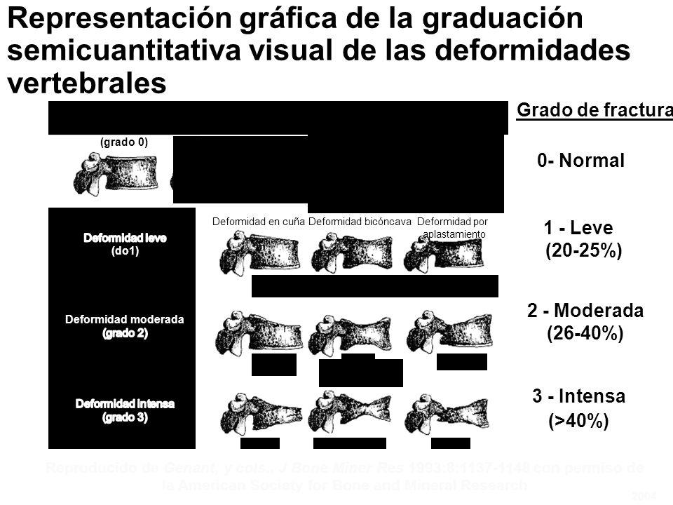 Deformidad en cuñaDeformidad bicóncavaDeformidad por aplastamiento Normal (Grade 0) Normal (grado 0) Reproducido de Genant, y cols., J Bone Miner Res 1993:8:1137-1148 con permiso de la American Society for Bone and Mineral Research Grado de fractura 1 - Leve (20-25%) 2 - Moderada (26-40%) 3 - Intensa (>40%) 0- Normal 2004 Representación gráfica de la graduación semicuantitativa visual de las deformidades vertebrales