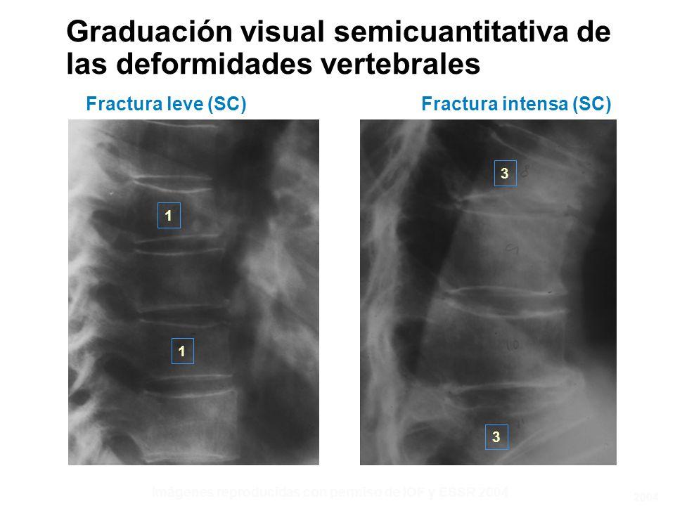 Fractura leve (SC) 1 1 3 3 Fractura intensa (SC) Imágenes reproducidas con permiso de IOF y ESSR 2004 Graduación visual semicuantitativa de las deformidades vertebrales 2004