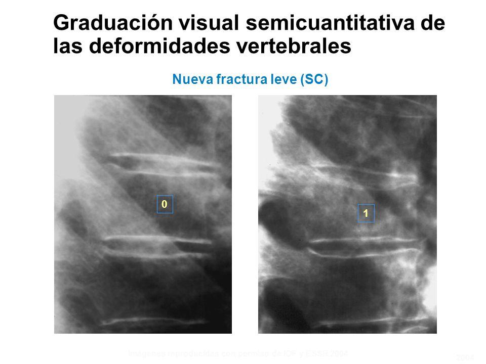 0 1 Imágenes reproducidas con permiso de IOF y ESSR 2004 Graduación visual semicuantitativa de las deformidades vertebrales Nueva fractura leve (SC) 2