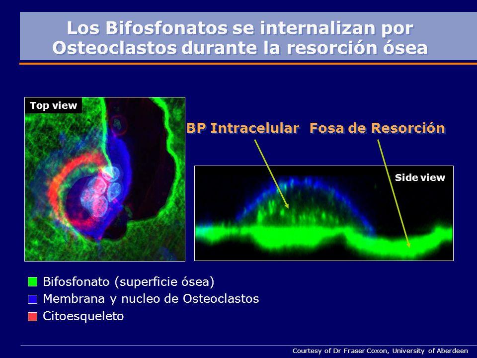 Courtesy of Dr Fraser Coxon, University of Aberdeen Side view Top view Fosa de Resorción BP Intracelular Los Bifosfonatos se internalizan por Osteoclastos durante la resorción ósea Bifosfonato (superficie ósea) Membrana y nucleo de Osteoclastos Citoesqueleto