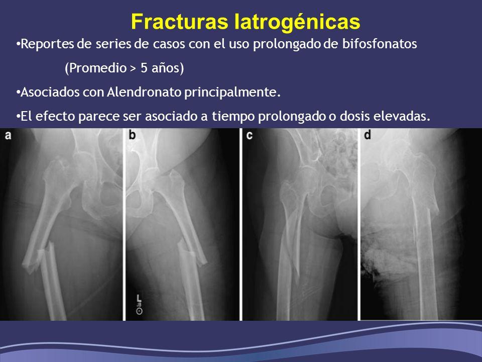 Fracturas Iatrogénicas Reportes de series de casos con el uso prolongado de bifosfonatos (Promedio > 5 años) Asociados con Alendronato principalmente.