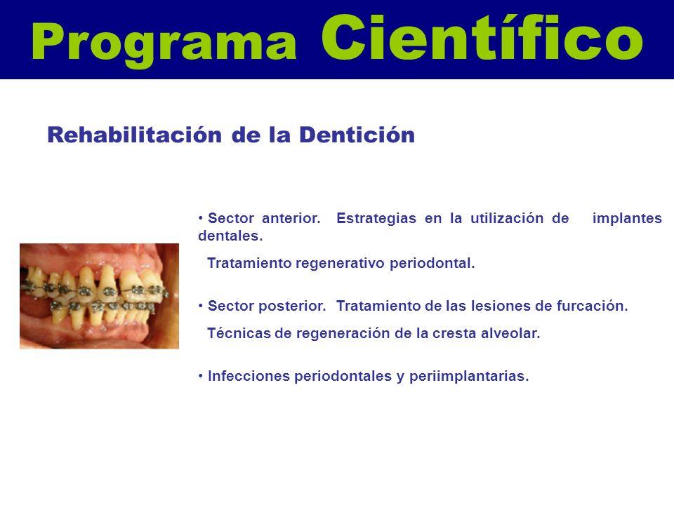 Programa Científico Sector anterior. Estrategias en la utilización de implantes dentales. Tratamiento regenerativo periodontal. Sector posterior. Trat