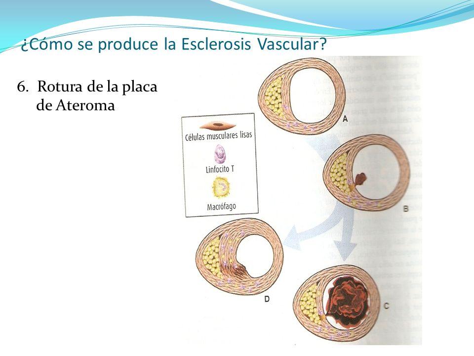 ¿Cómo se produce la Esclerosis Vascular? 6. Rotura de la placa de Ateroma