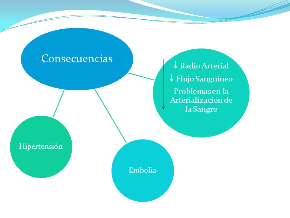 Consecuencias Embolia Radio Arterial Flujo Sanguíneo Problemas en la Arterialización de la Sangre Hipertensión