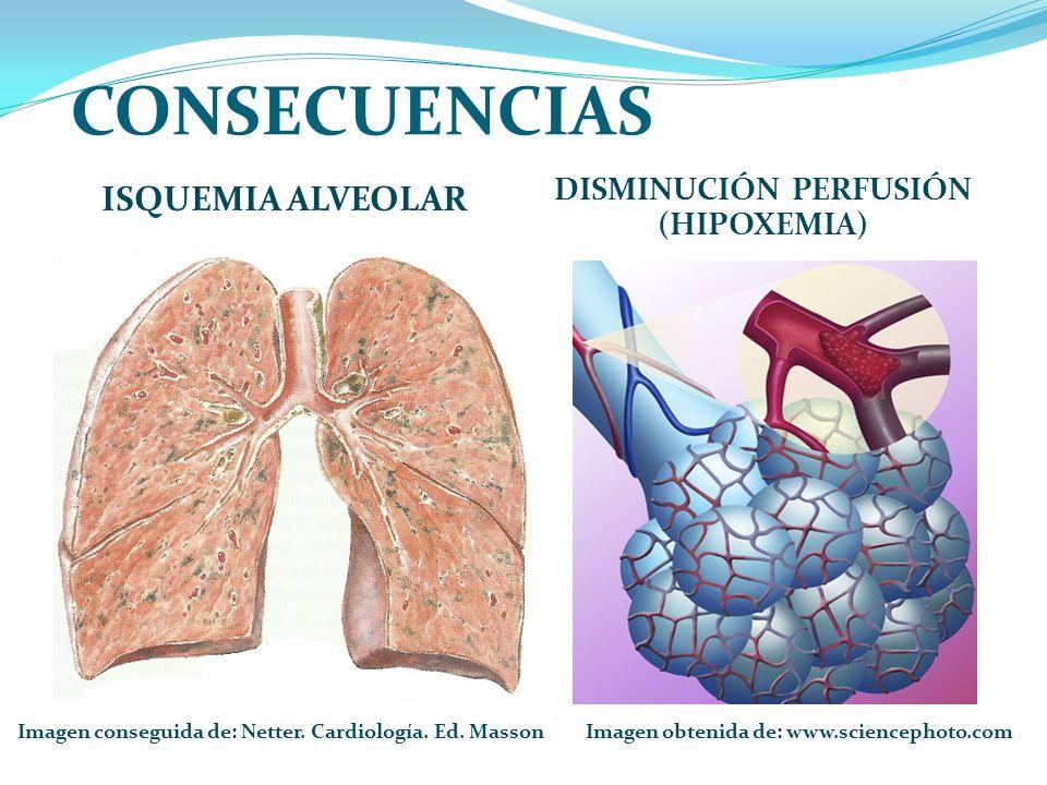 CONSECUENCIAS ISQUEMIA ALVEOLAR DISMINUCIÓN PERFUSIÓN (HIPOXEMIA) Imagen obtenida de: www.sciencephoto.comImagen conseguida de: Netter.