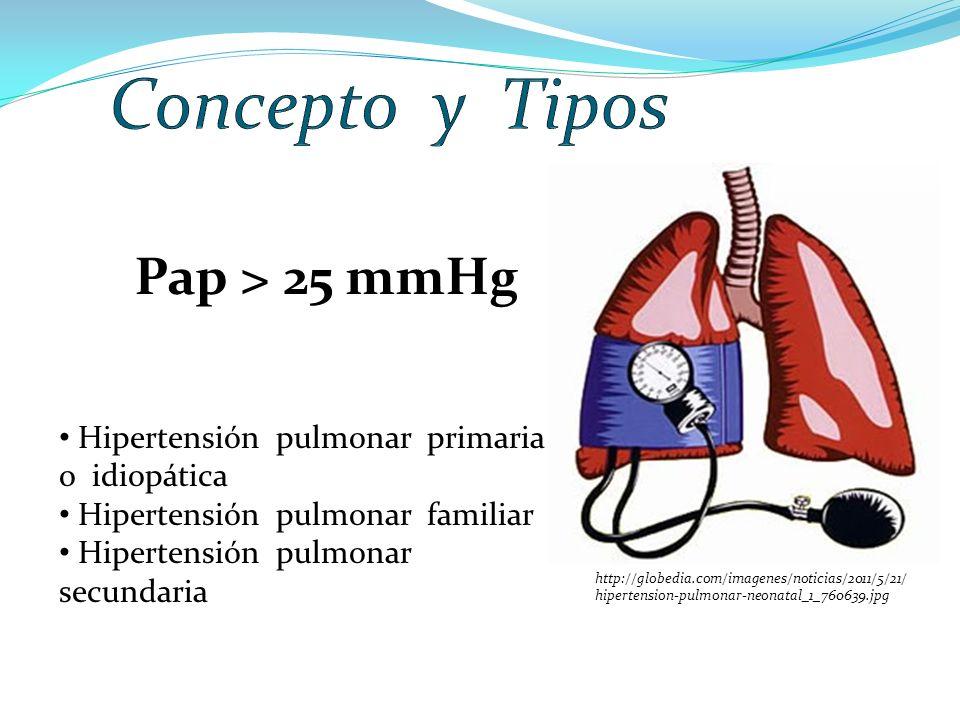 Pap > 25 mmHg Hipertensión pulmonar primaria o idiopática Hipertensión pulmonar familiar Hipertensión pulmonar secundaria http://globedia.com/imagenes/noticias/2011/5/21/ hipertension-pulmonar-neonatal_1_760639.jpg