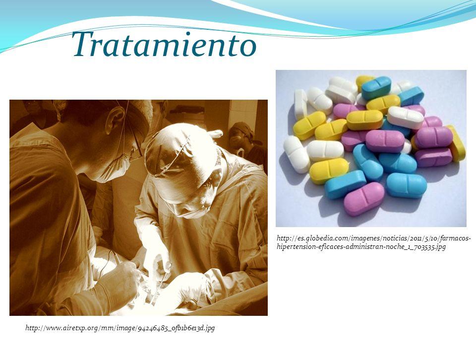 Tratamiento http://www.airetxp.org/mm/image/94246485_0fb1b6e13d.jpg http://es.globedia.com/imagenes/noticias/2011/5/10/farmacos- hipertension-eficaces-administran-noche_1_703535.jpg