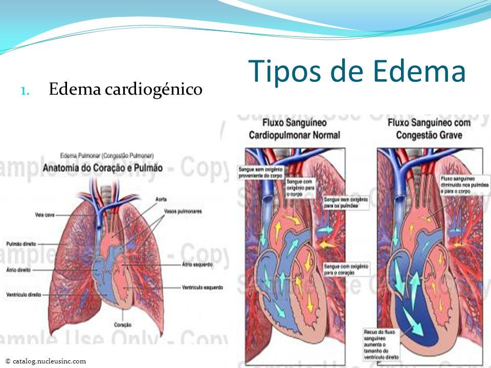 Tipos de Edema 1. Edema cardiogénico © catalog.nucleusinc.com