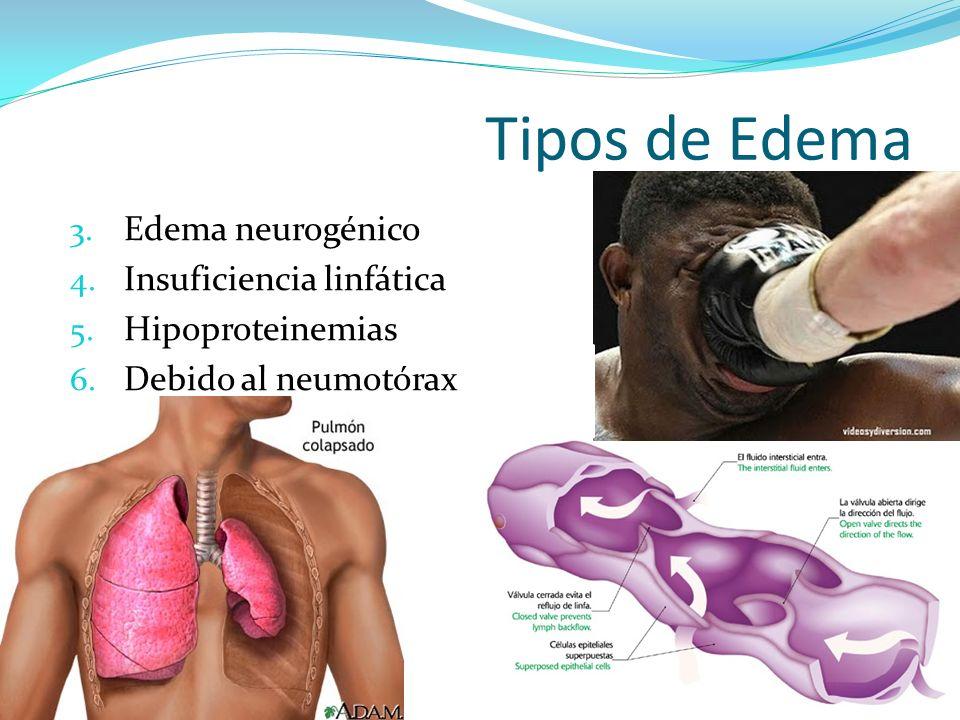 Tipos de Edema 3. Edema neurogénico 4. Insuficiencia linfática 5. Hipoproteinemias 6. Debido al neumotórax