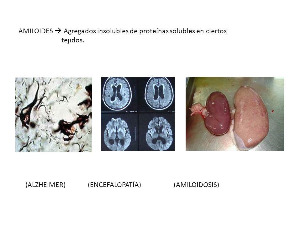 AMILOIDES Agregados insolubles de proteínas solubles en ciertos tejidos. (ALZHEIMER) (ENCEFALOPATÍA) (AMILOIDOSIS)