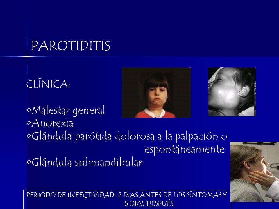 PAROTIDITIS CLÍNICA: Malestar general Anorexia Glándula parótida dolorosa a la palpación o espontáneamente Glándula submandibular PERIODO DE INFECTIVI