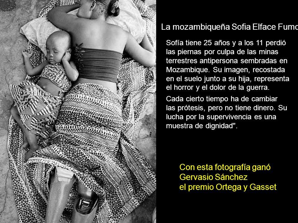 Sofía tiene 25 años y a los 11 perdió las piernas por culpa de las minas terrestres antipersona sembradas en Mozambique.